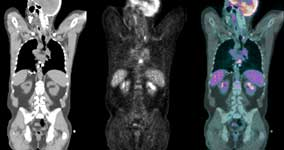 side-by-side trio showing tracers in abdominal cavity